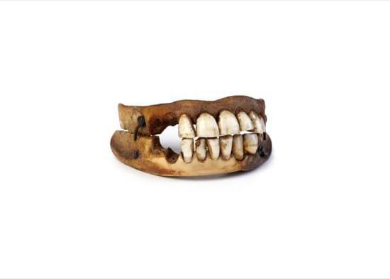 Dentadura postiza realiza con dientes reales