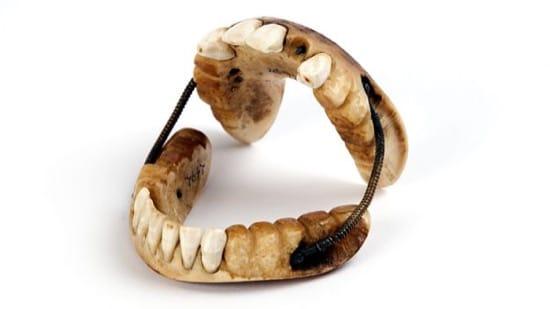 Los dientes de la batalla de Waterloo