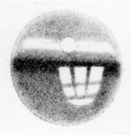 Optograma de Kühne